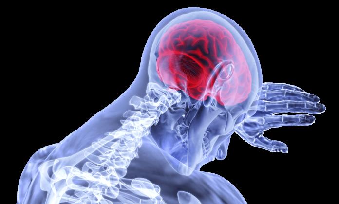 glavobolja, liječnici, stress
